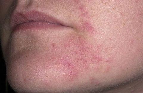 menyu-po-diete-pri-seborejnom-dermatite-na-kozhe-lica-i-golovy